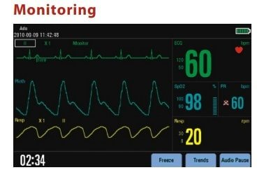 jual defibrillator mindray d3