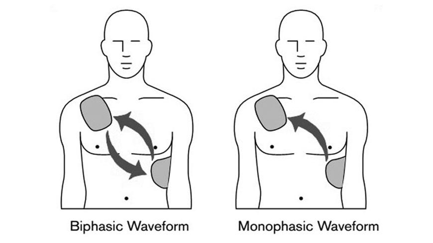 Perbedaan Mendasar Mengenai Defibrillator Biphasic Dan Monophasic